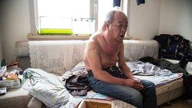 Muž žije už 13 let s obřím krkem! Kvůli chybě lékařů
