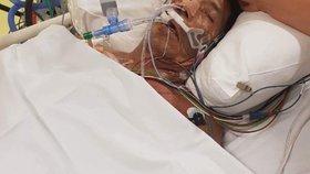 Nemoc muže sžírá zaživa: Přišel o obě nohy, možná mu amputují i ruce