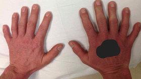 Copak je špatně na těchto rukách: Poznáte smutný defekt?