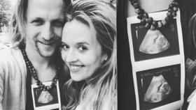 Tomáš Klus se pochlubil třetím potomkem. Ukázal fotku z ultrazvuku