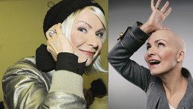 Anna K. znovu bojuje s rakovinou: Ztráta vlasů je to nejmenší