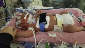 Láskyplný polibek zabil třítýdenní miminko. Marianě způsobil meningitidu