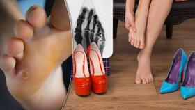 Boty, které škodí! Nohy musí být nejen zdravé, ale i krásné