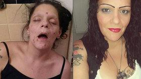 »Vypadala jsem jako mrtvola!« Šokující snímky matky, která porazila závislost na drogách