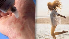 Nevyléčitelná nemoc vede ke zkrácení života: Lupénku léčí moře!