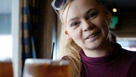 Lékaři tvrdili, že nepřežije své dětství. Dívka ale žije s děsivou nemocí dál!