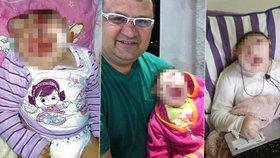 Foto jen pro otrlé: Holčička bez obličeje neměla přežít první hodiny, teď oslavila deváté narozeniny
