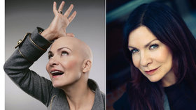 Anna K. absolvovala 12 chemoterapií: Teď ji čeká operace a ozařování!