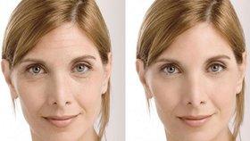 Tvář bez vrásek! Je to opravdu možné po 30 dnech domácí péče?