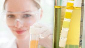 Co možná nevíte o moči: Co všechno o vás prozradí a proč je urinoterapie nesmysl?