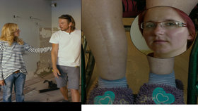 Petra z Mise nový domov: Přes 60 zlomenin na těle! Byt je pro ni nebezpečný