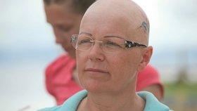 Blanka z Robinsonova ostrova trpí vážnou nemocí: Přišla o vlasy i obočí