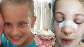 Holčička z Blatné si po pádu ve škole zlomila nos a utrhla bradu od čelisti: Učitelka nezavolala záchranku