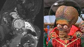 Kuk a je to mimozemšťan! Těhotnou maminku vyděsil snímek jejího nenarozeného synka