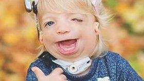 Matka holčičky se vzácným syndromem: Dcerka nepotřebuje lítostivé pohledy