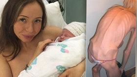 Anorektička Emma vážila šílených 18 kilo a hrozila jí smrt. Nyní porodila druhé dítě