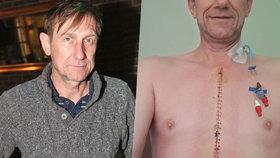 "Duchoslavovi alias Cabadajovi po operaci srdce obnažili hruď: ""Zdobí"" ho na 35 stehů!"