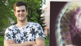 23letému Milanovi tuhne páteř. Píchá si injekce do stehen kvůli Bechtěrevovi