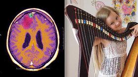 Klárce (8) s epilepsií léky nezabíraly. Po operaci nepoznávala ani kamarády