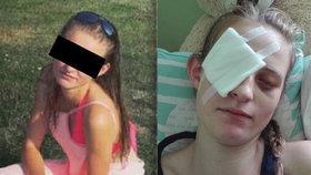 Hasičce Míše (18) se obrátil život naruby: Proud vody ji téměř připravil o zrak! Léčba neexistuje