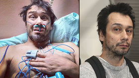 Pavel Liška skončil v nemocnici: Napojený na hadičky a se strachem o život!