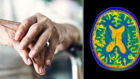 Hrozí vám Alzheimer? Test prozradí, jak na tom skutečně jste!