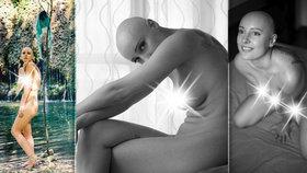 Sára si od 12 let rve vlasy s i kořínky: Fotí se nahá, aby upozornila na svou nemoc!