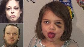 Děsivé fotografie odhalují, jak byla dívka (†4) mučena před smrtí bitím od přítele své matky