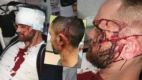 Cizinec, který brutálně napadl dva Brňany, byl v podmínce: Trest? Prospěšné práce...