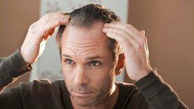 Alopecie je stále častější: Také vás trápí pleš?