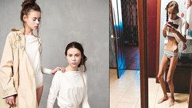 """""""Zombie dvojčata"""" Dáša a Máša (14) kvůli modelingu zhubla na kost! V nemocnici je nechtěli přijmout"""
