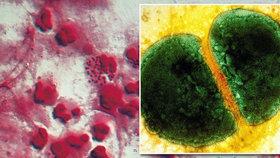 Dvě turistky se nakazily superkapavkou: Antibiotika nezabírají!