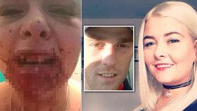 Kráska si změnila fotku na Facebooku: Přítel jí za to vykopal zuby!