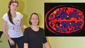 Iva s roztroušenou sklerózou: Okolí si myslelo, že jsem opilá! Kvůli mé špatné chůzi