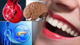 Bolí vás zuby? Varují před nemocí v našem těle! Velký přehled od řezáků po stoličky