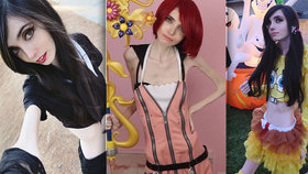 Nejslavnější anorektička světa, kterou už lidé pohřbili, se náhle ozvala
