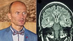 Zalehnout? Klacík do úst? Odborník promluvil o nemoci, kterou trpí Dalibor Gondík!