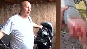 Jozefa s vnoučkem (1) brutálně napadli agresivní psi: Statečný dědeček bránil dítě vlastním tělem