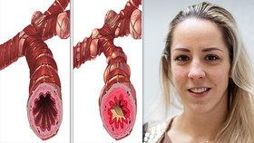 """Plavkyně Petra """"kašlala"""" na léčbu astmatu! Lékaři varují: Polovina pacientů nebere předepsané léky! Co hrozí?"""