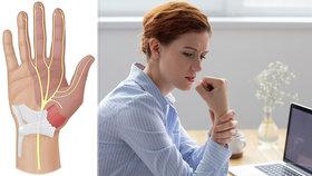 """Počítačovou myší denně """"našmejdíme"""" až půl kilometru! Lékařka: Může to skončit operací!"""