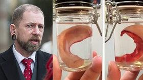 Dr. Zloun uřízl bradavku a ucho pacientům, kteří si to přáli: Půjde za to do vězení?