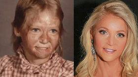 V dětství ji znetvořil výbuch plynu: Teď si splnila sen a šla do soutěže krásy