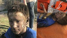 Chlapci (14) zčernala tvář poté, co ho zasáhlo 10 tisíc voltů. Popáleniny má na 40 % těla