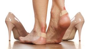 Nevejdete se do úzkých bot? Tyhle triky vám pomůžou