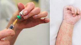 Nakažených spalničkami stále přibývá: 6 největších mýtů o nemoci a očkování