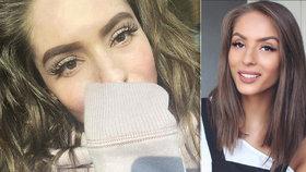 Popálená youtuberka Třešničková ukázala kus tváře: Bála jsem se, přiznala