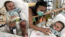 Horor na dovolené v Thajsku: Malá Lilliana chytila smrtelného meningokoka