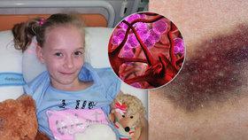 Zákeřnou nemoc prozradily modřiny: Statečná Eliška (9) čeká na dárce kostní dřeně!
