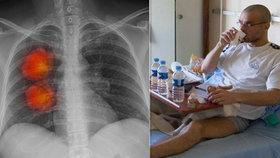 Radek (45) s rakovinou plic si speciální léčbu za 360 tisíc platil ze svého! Teď svitla naděje i dalším pacientům