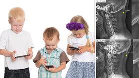 Nečekaně rychlé důsledky digitální doby: Zírání do mobilů mění lebky, varují lékaři